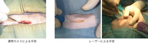通常のメスとレーザーによる手術写真